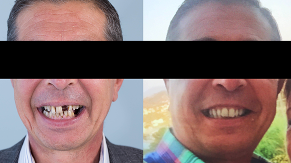 Figure 22 This pre-treatment photo on the right was used as the basis for the Mk 1 immediate denture
