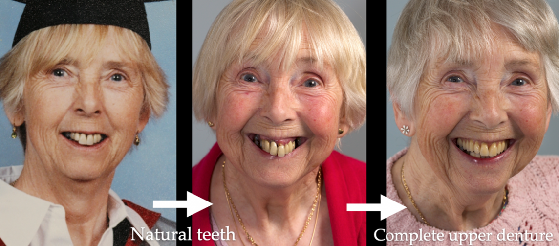 Extremely natural looking immediate complete upper denture - full protocol immediate through to definitive dentures