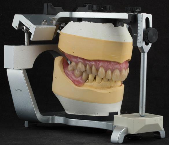 Figure 114 Mk 2 finished dentures on the articulator