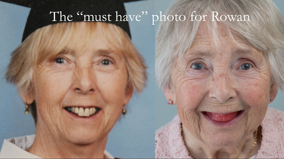 Figure 77 The technician must receive both of these photographs to allow arrangement of the artificial teeth in the same positions as the natural ones