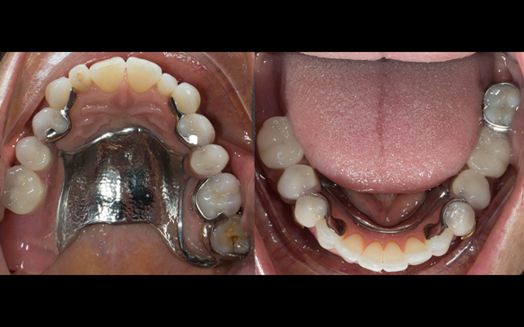 Figure 83 Definitive dentures fitted 9 months after extractions