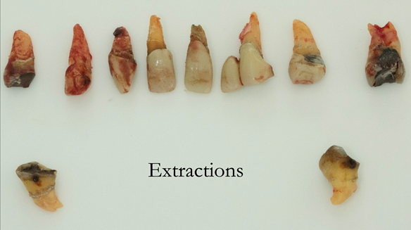 Figure 32 Extracted teeth