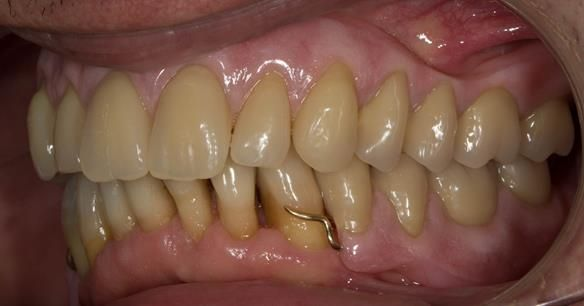 Figure 117 Mk 2 finished dentures fitted with 0.9 mm wrought gold clasps on LR4 and LL3