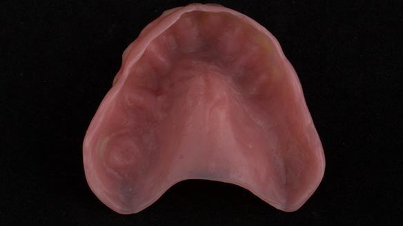 Figure 25 Mk 1 Immediate denture with thin flange