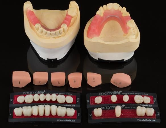 Figure 42 Mk 1 working casts with silicone matrices for temporary crowns. Wax rims for recording the occlusion in ICP. Denture teeth to be copied by the technician making the porcelain fused to zirconia crowns.