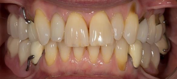 Figure 36 Immediate dentures fitting in ICP. Schottlander Enigmalife teeth.