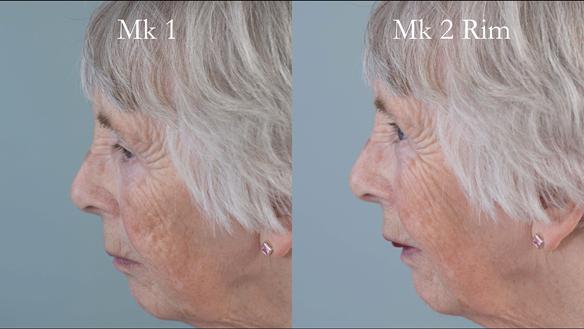 Figure 76 Comparison of Mk 1 denture and Mk 2 rim - improved lip support