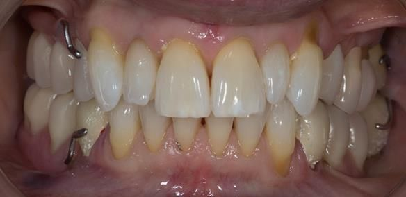 Figure 43 Temporary crowns and Mk 1 dentures fitted.