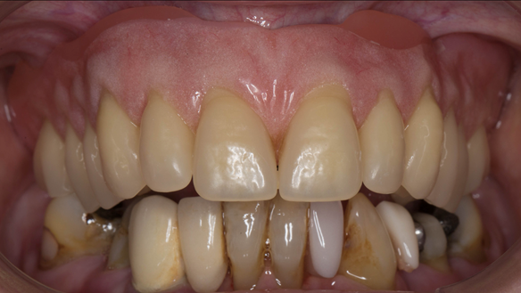 Figure 48 Immediate denture with chairside reline