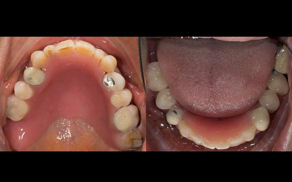 Figure 39 Immediate dentures fitted - no gaps between collets and teeth. Schottlander Enigmalife teeth.