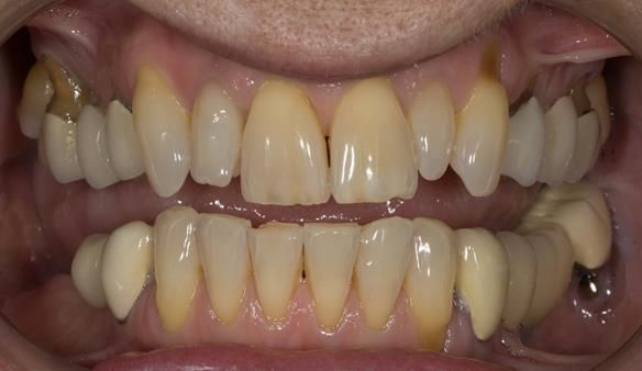 Figure 3 Pre - treatment.
