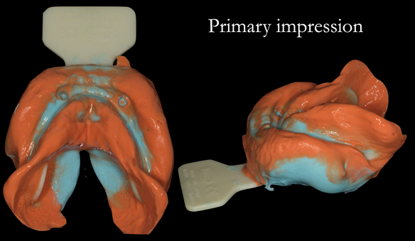 Figure 13 Lower primary impression with two viscosities using Zhermack Tropcalgin (base) and Neocolloid (Syringe). This allows full extension to record the sulcui
