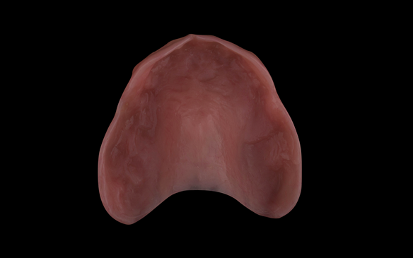 Figure 59 Dental laboratory relined intaglio surface using Pegasus Cold Cure acrylic - Schottlander
