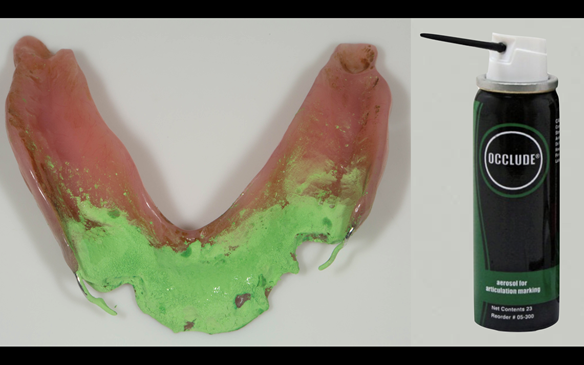 Figure 69 Mk 1 immediate lower partial denture requires adjustment to seat properly over the rest seats using Occlude spray