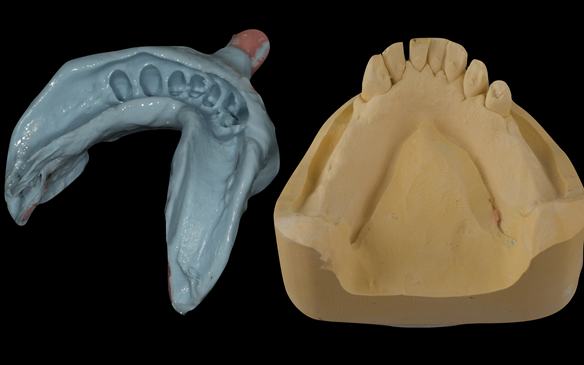 Figure 74 Mandibular definitive impression made in alginate