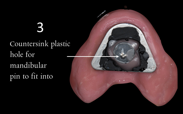 Figure 91 Visit 3 for Mk 2 fabrication. Inter-maxillary registration with central bearing apparatus. Maxillary plate with plastic disc with countersunk hole placed over CR arrow head. This allows the mandibular pin to fit into the hole to enable accurate