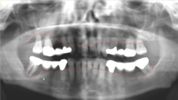 Figure 7 OPG radiograph supplied by the referring GDP showing reduced bone levels on posterior teeth.