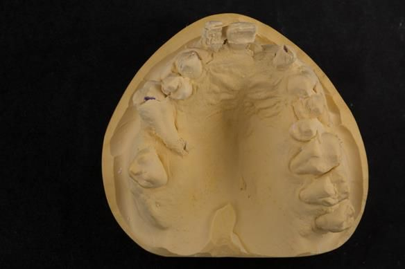 Figure 19 Cast for making the immediate complete denture with full depth of the sulcus recorded