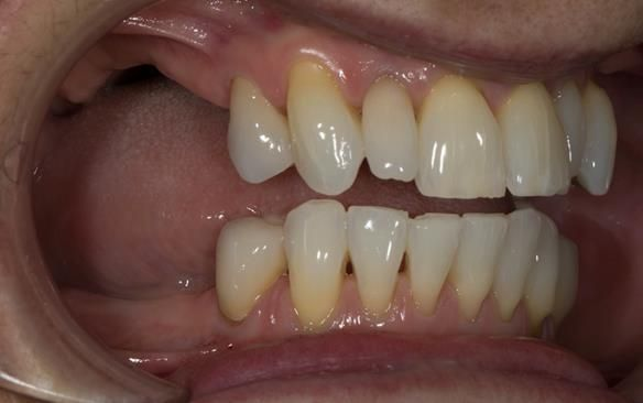Figure 53 Porcelain fused to zirconia crown crowns incorporating parallel guiding surfaces, ledges and rest seats for the metal based partial dentures - fitted with Fuji plus cement.