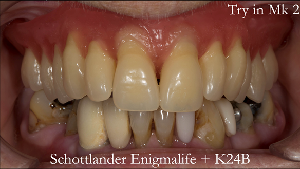 Figure 91 Mk 2 teeth wax try in with Schottlander Enigmalife teeth in mouth in centric relation position