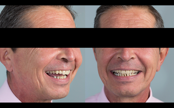 Figure 102 Mk 2 definitive denture try in - at this visit the patient assesses the aesthetics by 1. video, 2. still photographs comparing Mk 1 with Mk 2 and direct observation in a mirror. Only when he was completely happy do we proceed with finishing.