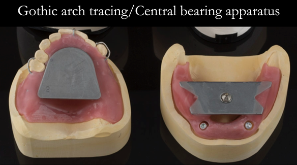 Figure 18 Registration visit with central bearing apparatus (gothic arch tracing) for CR recording