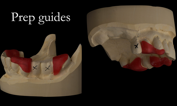 Figure 28 Preparation guides for sectioning the bridges to create guide surfaces allowing accurately fitting immediate dentures