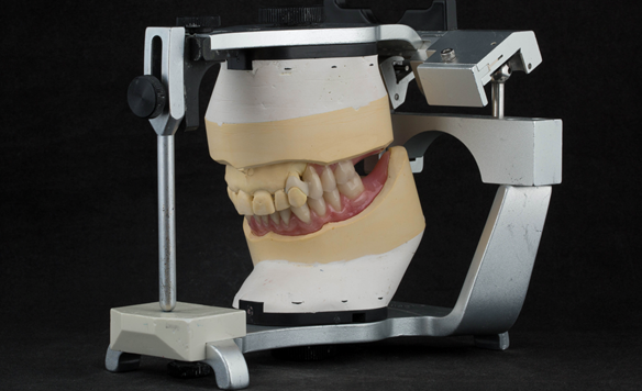 Figure 26 Mounted casts with finished dentures on the articulator. Schottlander Enigmalife denture teeth and Dental D clasps