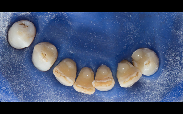 Figure 67 Composite rest seats placed on the lingual of the lower anterior teeth to assist in stabilising and supporting the metal based lower denture