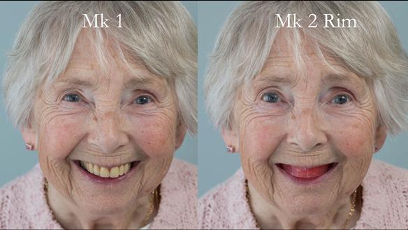 Figure 74 Comparison of Mk 1 denture and Mk 2 rim