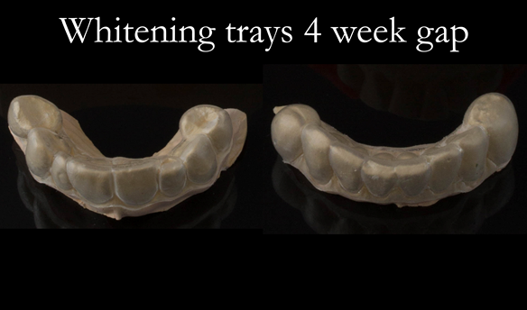 Figure 40 Night time tooth whitening carried out with 10% Carbamide Peroxide over 2 weeks.