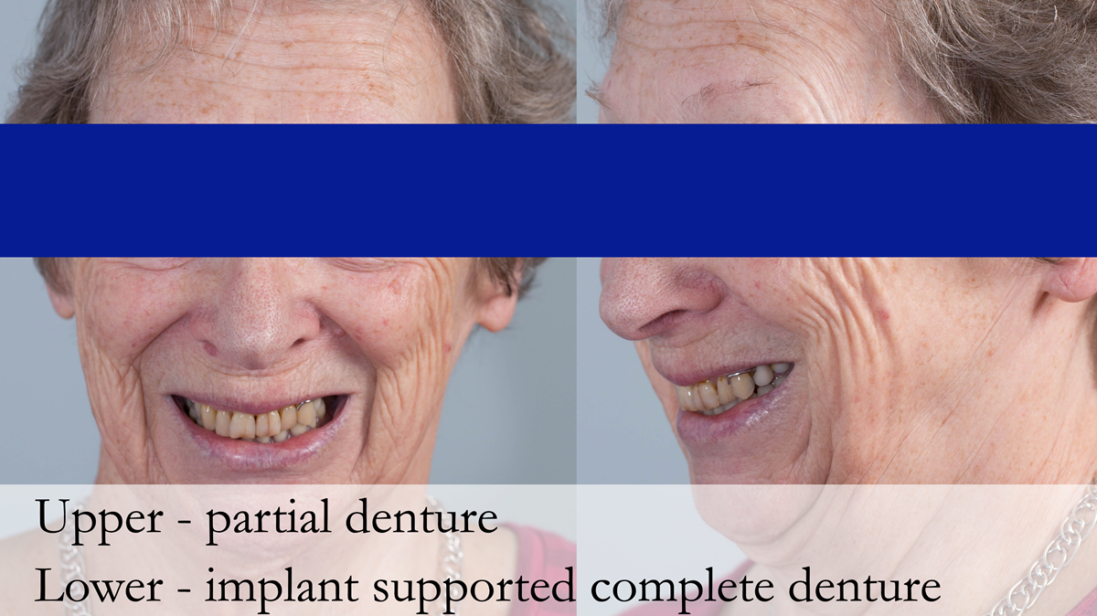 Figure 1 Pre - treatment. High smile line showing metal clasp.
