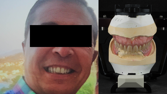Figure 31 Finished denture mimicking the natural teeth