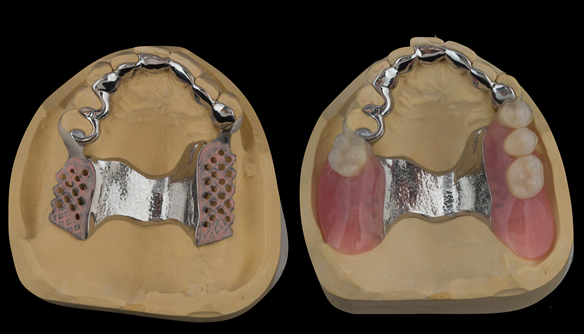 Figure 29 Upper denture cobalt chromium base and finished denture. Optimal extension of saddles and palatal strap for maximum support. Dental bar gives additional support and should teeth be lost in the future this can be added to
