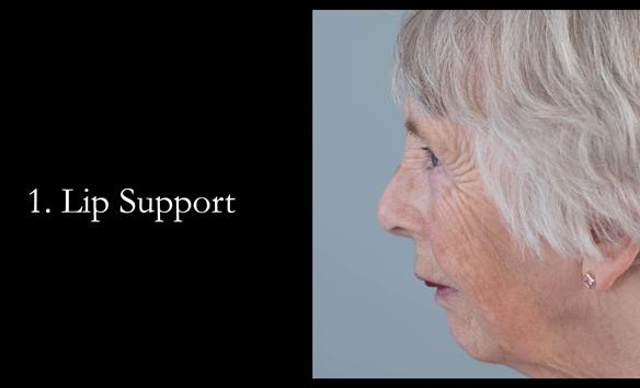 Figure 67 Lip support is prescribed