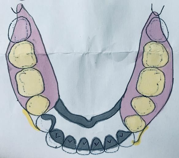 Figure 64 Design of metal based lower denture