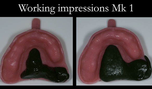 Figure 16 Custom trays for the definitive impressions. Greenstick added to create a stop on the palate to avoid the tray touching the teeth. Border moulded in the UL area.