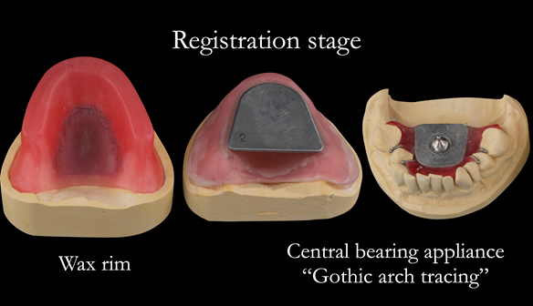 Figure 63 Registration visit with wax rim for tooth position/OVD recording and central bearing apparatus for CR recording