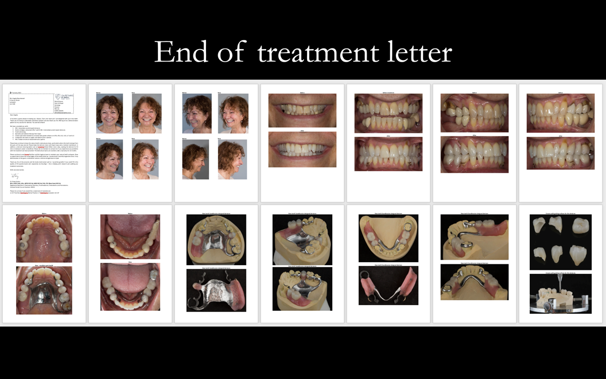 Finlay's fixed and removable prosthodontic case presentation of crowns and partial dentures