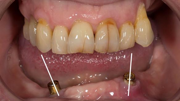 Figure 6 Divergent implants - over 30 degrees