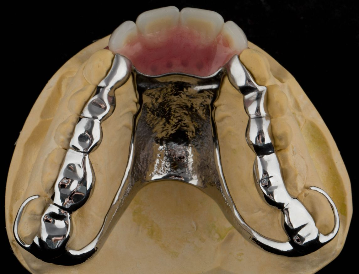 Provision of a maxillary cobalt chromium based partial denture/protective occlusal splint in a heavily restored dentition