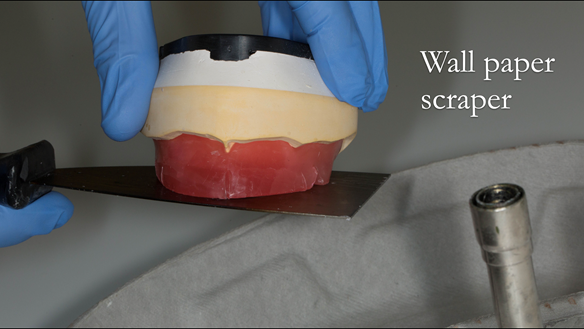 "Figure 70 The incisal plane and occlusal plane are trimmed with a heated ""wall paper"" scraper"