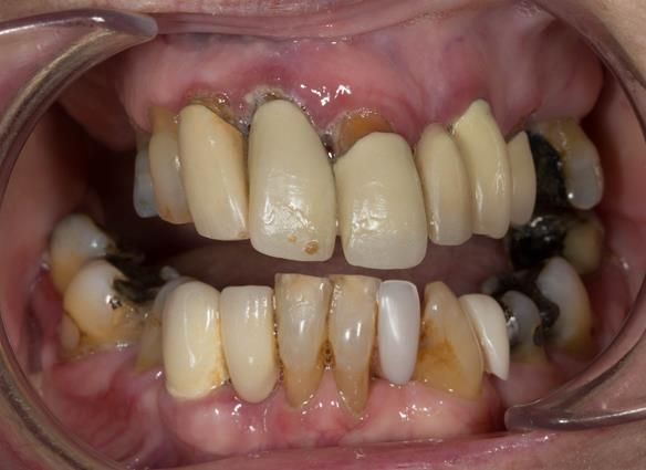 Figure 3 Pre - treatment. Failing upper teeth