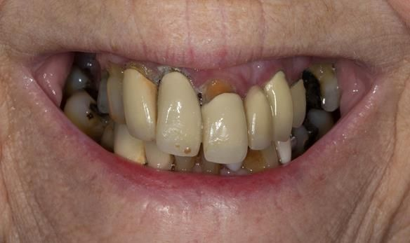 Figure 2 Pre - treatment. High smile line and failing upper teeth.