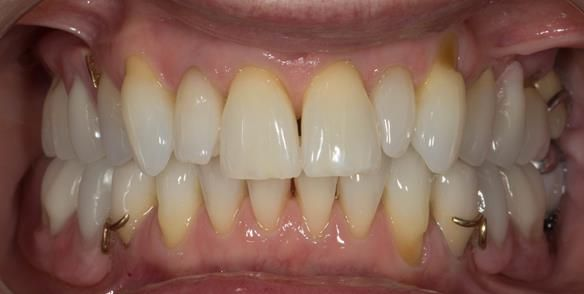 Figure 86 Definitive dentures fitted.