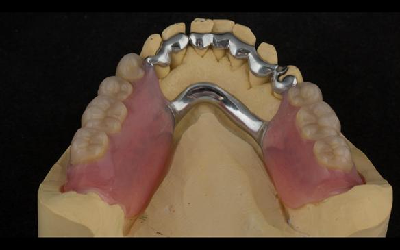 Figure 112 Mk 2 mandibular metal based denture showing open Scandinavian hygienic design.