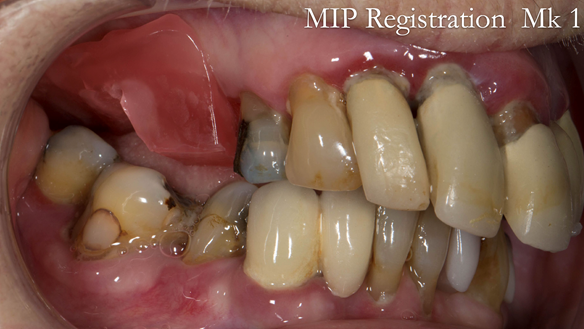 Figure 21 Registration visit with wax rim - teeth in maximum intercuspation