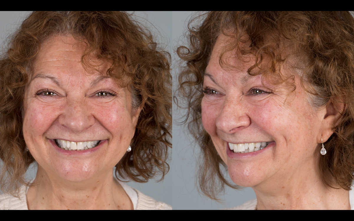 Figure 90 Delighted patient following tooth whitening, replacement crowns and metal based partial dentures.