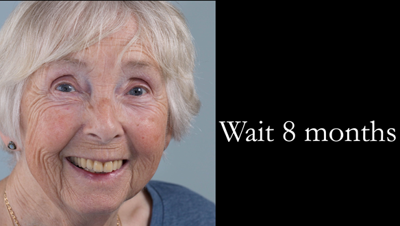 Figure 56 The patient is in a stable holding position for the next 8 months whilst further resorption occurs