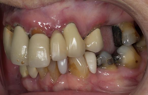Figure 5 Pre - treatment. Failing upper teeth